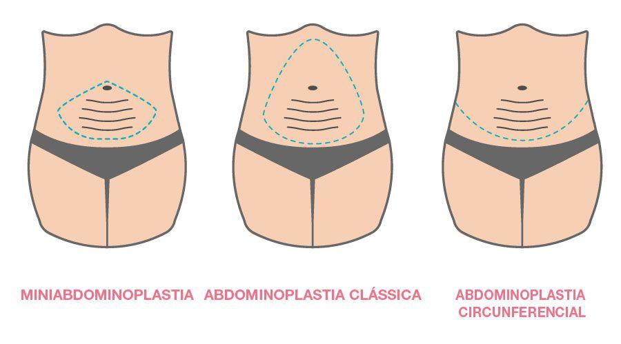 Abdominoplastia Tipos