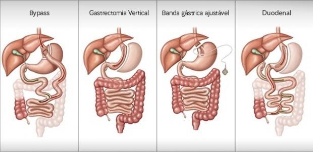 tipos de cirurgia bariátrica