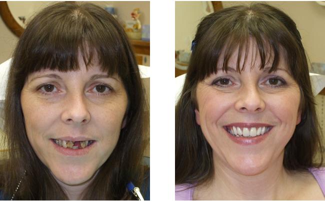 Antes e Depois Implante Dentário