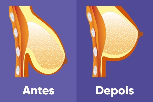 Mastopexia - Antes e Depois