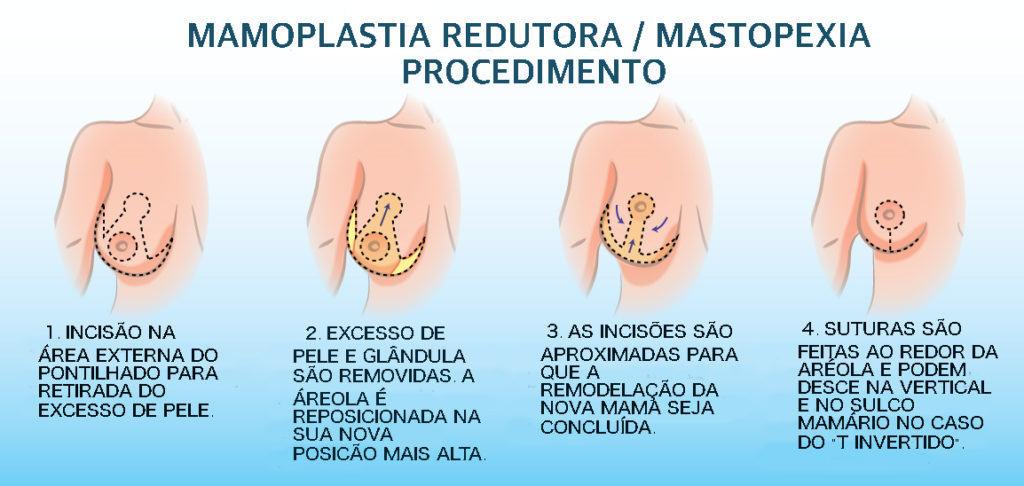 Como funciona a Mastopexia