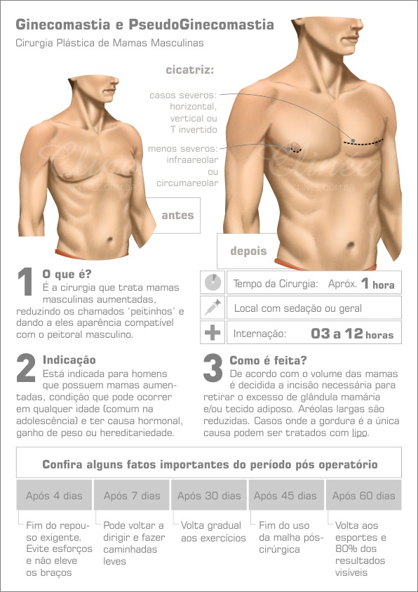pós operatório ginecomastia