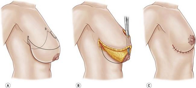 Como é feita a cirurgia de redução de mama?